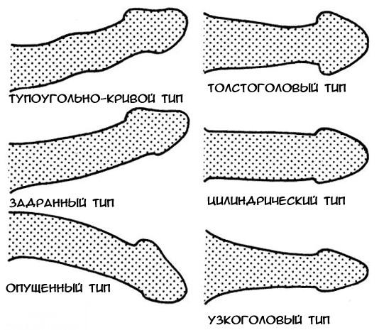 Mi az ívelt pénisz vagy Peyronie betegsége?