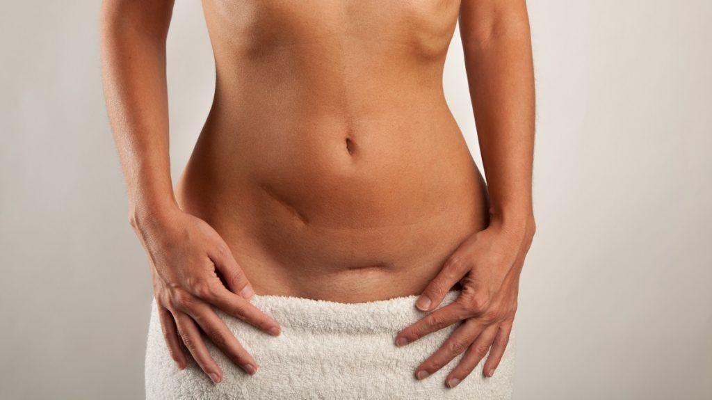 Fura heges csíkok, kiszáradás, fehér lepedék a fitymán és körülötte. - Bőrbetegségek