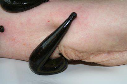 erekció a hirudoterápia során