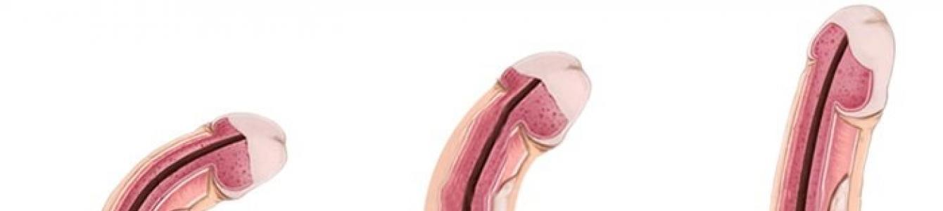 a pénisz eltérése az erekció során