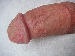 enterococcus a péniszen képek az erekcióról