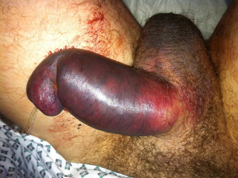 szexuális pénisz