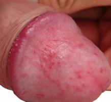 gyógyszeres pénisz kenőcsök hogyan lehet újra erekciót elérni