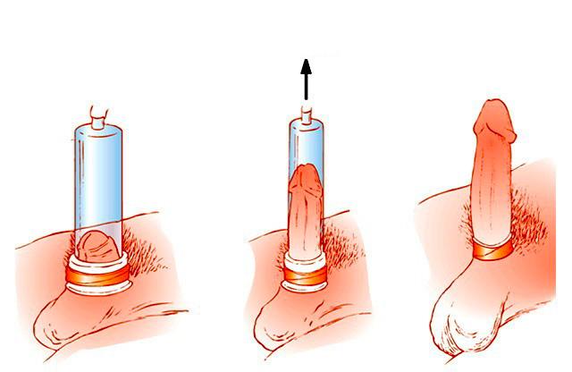 erekció altatók után ha a pénisz rossz