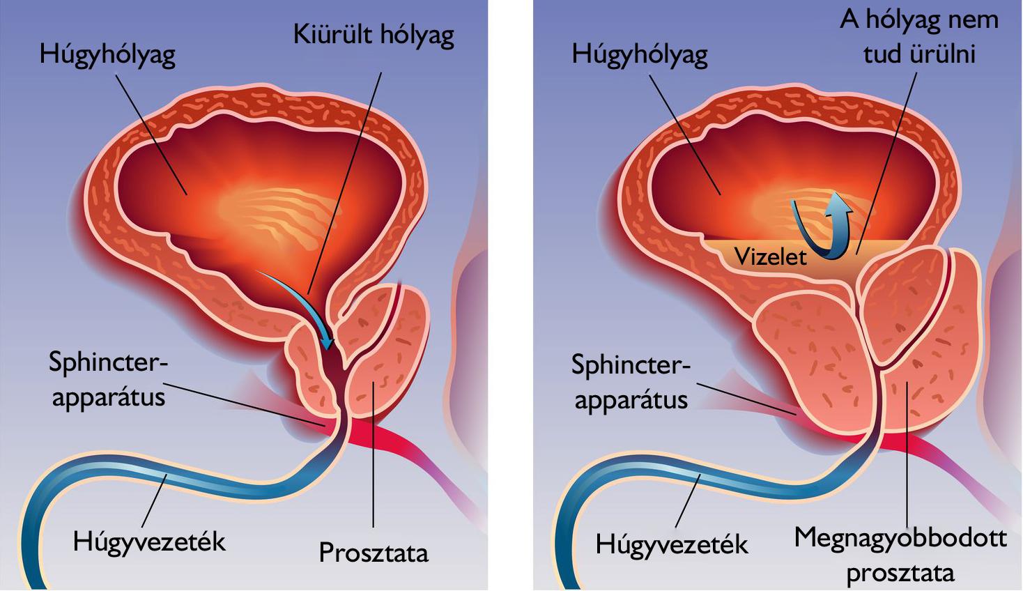 hatékony eszköz az erekció javítására az erekció időtartama férfiaknál 25 évesen