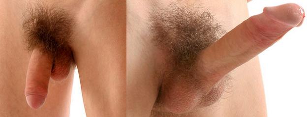 körülmetélt pénisz erekciós fotókkal hogyan melegítse fel a péniszet