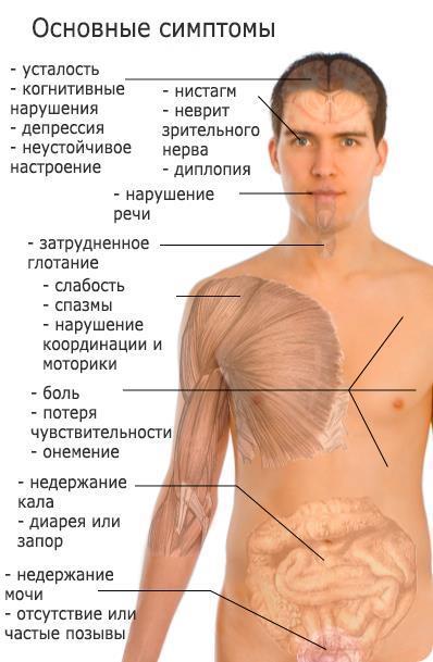 baklosan és erekció