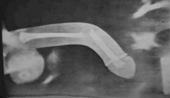 pénisz a szellemben leghosszabb kakas az erekcióban