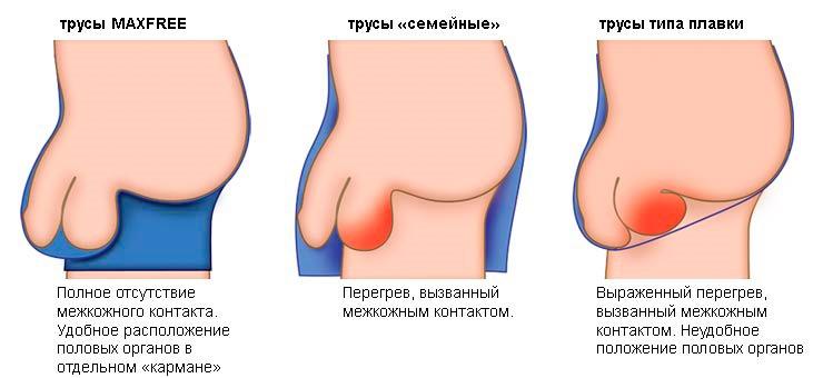 pénisz az orvosi enciklopédiában az spray az erekció javítására