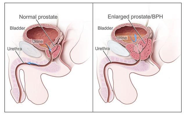 Krónikus prosztatagyulladás