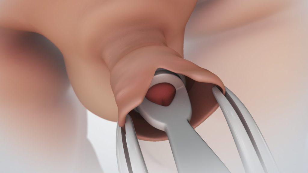különböző kinézetű péniszek