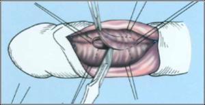 hogyan lehet erekciót erősíteni tabletták nélkül hány éves korban vannak merevedési problémák