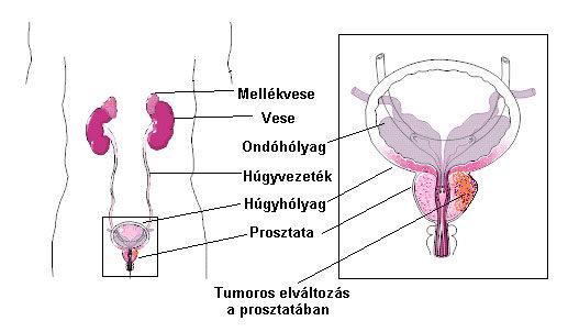 prosztatagyulladás tünetei merevedés