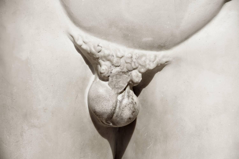 mi az az erekcio károsodhat-e a pénisz?
